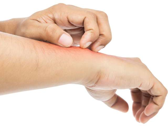Аллергия на пиво: симптомы, проявления и методы лечения